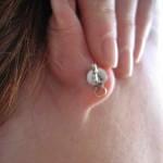 Ear Lobe Lift