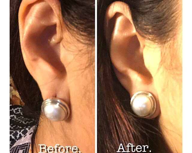 Julleen Lobe Lift Earring Backs come highly recommended